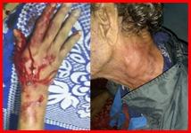 Elderly man beaten during curfew